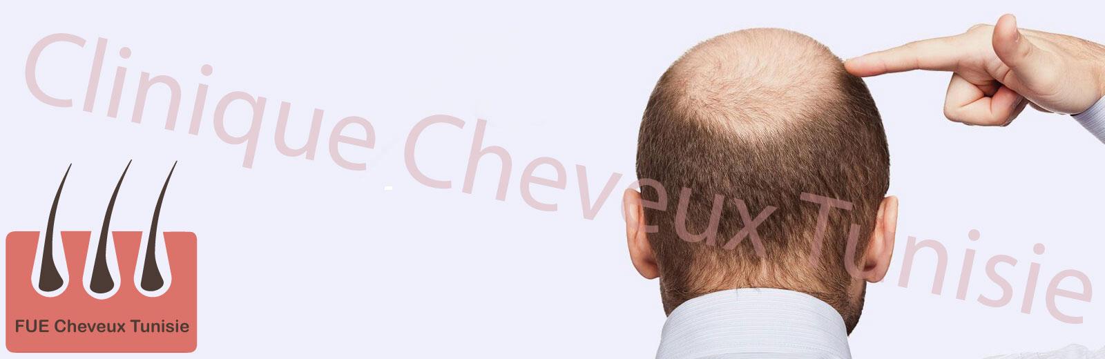 clinique cheveux Tunisie