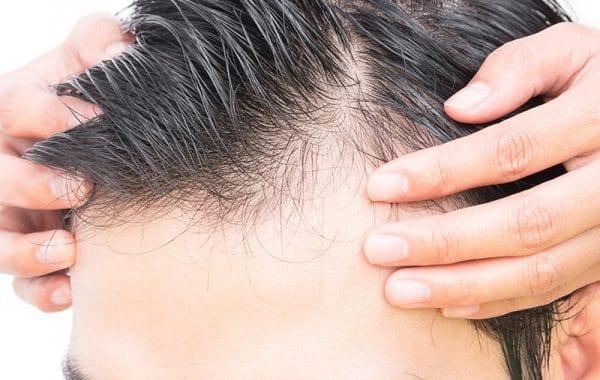 greffe de cheveux tunisie prix